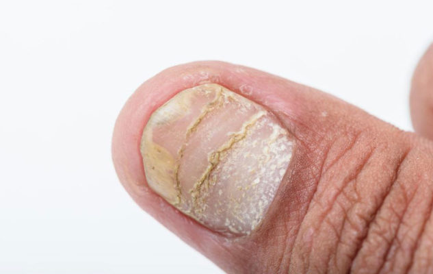 Different Types Of Nail Diseases And Their Causes